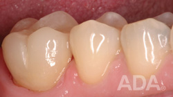 After Crown Amalgam