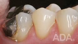 Before Crown Amalgam
